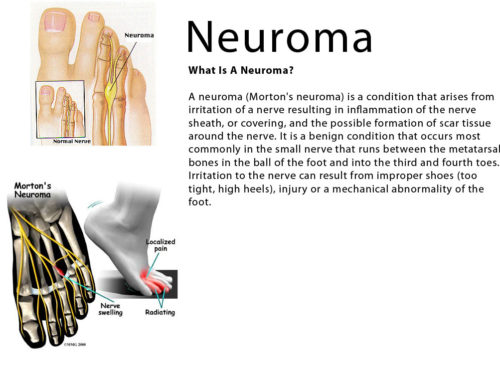 I have been diagnosed with a Neuroma…